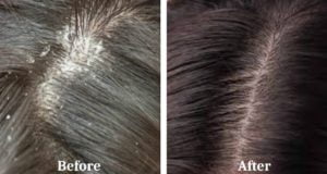 how to get rid of dandruff,get rid of dandruff,dandruff,how to get rid of dandruff fast,how to remove dandruff,how to get rid of dandruff instantly,get rid of dandruff fast,get rid of dandruff permanently,how to get rid of dandruff in one wash,how to get rid of dandruff naturally,how to get rid of dandruff overnight,how to get rid of dandruff and hair fall