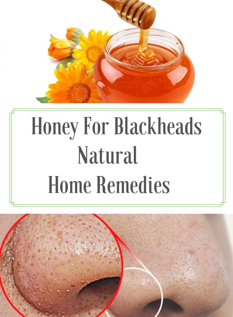 honey for skin,benefits of honey,home remedies for glowing skin with honey,home remedies for acne scars using honey,home remedies for glowing skin using honey,honey for face,honey face mask,homemade face packs with honey,how to remove blackheads,blackheads,how to get rid of blackheads,remove blackheads at home,blackheads removal,how to remove whiteheads,how to get clear skin,how to remove blackheads at home,home remedies to remove blackheads and whiteheads,how to get rid of whiteheads,get rid of blackheads,how to remove a blackhead